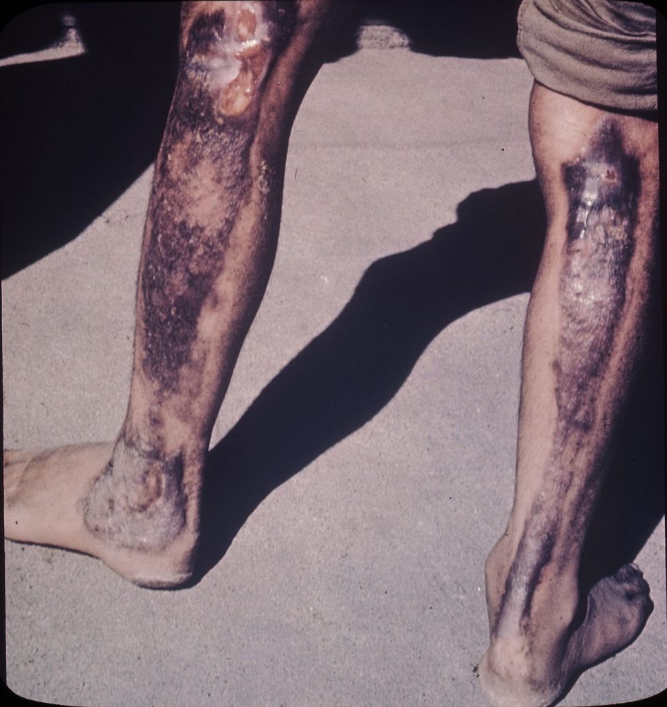"""<span style=""""color: #ffffff;"""">Hiroshima patients - burns due to atomic radiation of legs</span>"""
